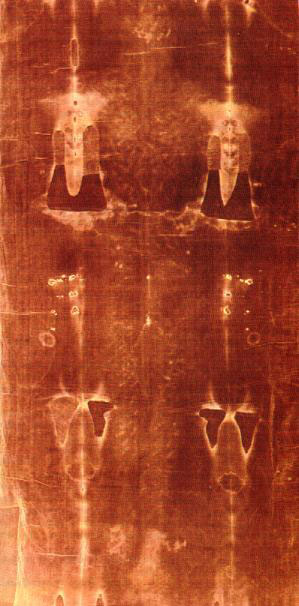 The photographic negative of the dorsal imprint.